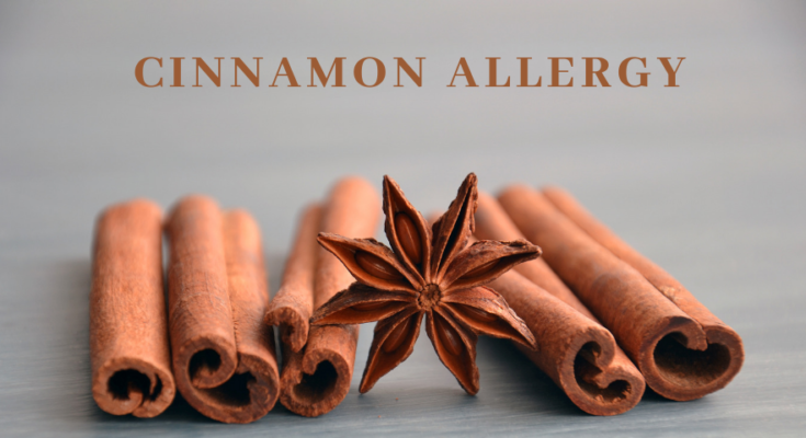 Cinnamon Allergy